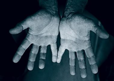 Ранний постиммобилизационный период при перемещении мышц