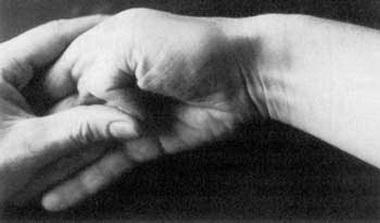 Лечение синдрома плечо-рука