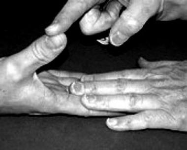 Контрактуры суставов пальцев