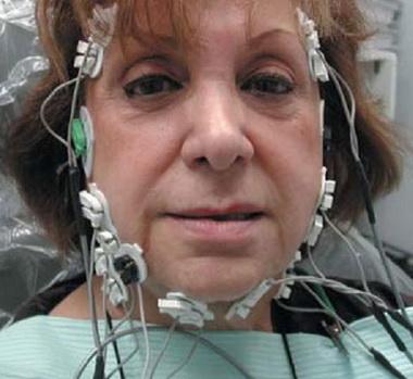 Стимулодетекционная электромиография