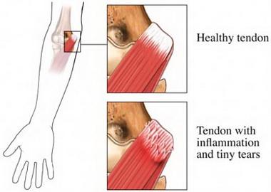 Лечение латерального эпикондилита плечевой кости