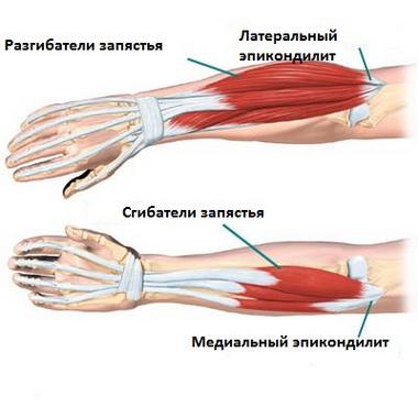 Латеральный эпикондилит плечевой кости