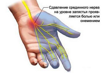 Синдром m. interosseus anterior