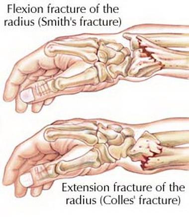 Диагностика костно-суставных повреждений