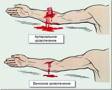 Повреждения артерий