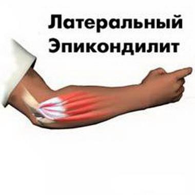Этиопатогенез латерального эпикондилита плечевой кости