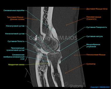 Контрактуры локтевого сустава