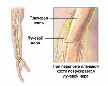 Повреждение лучевого нерва
