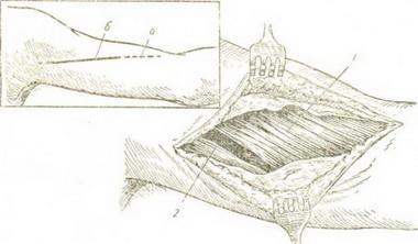Перемещения мышц при параличе лучевого нерва