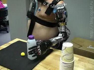 Механические протезы