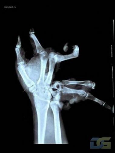 Переломы дистальной фаланги пальцев