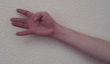 Миотендит сгибателей пальцев