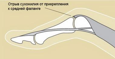 Повреждения сгибателей