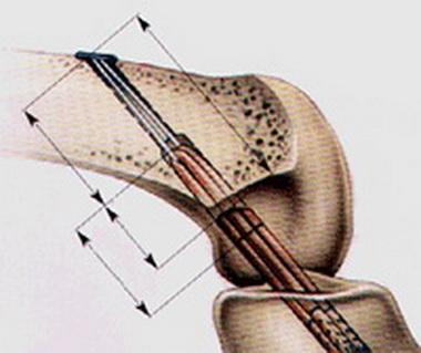 Сухожильный трансплантат