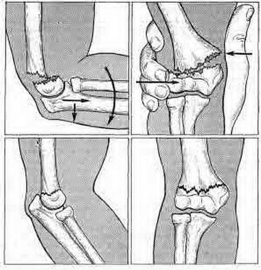 Болезненные контракуры суставов