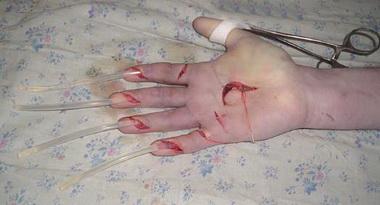 Тяжелые повреждения кисти и пальцев