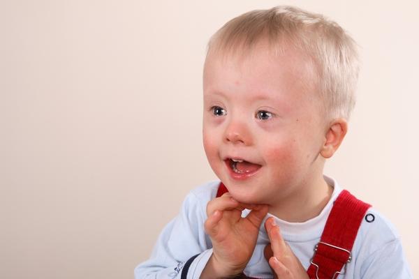 Реабилитация детей с синдромом Дауна в Тюменской области эффективна на 87%